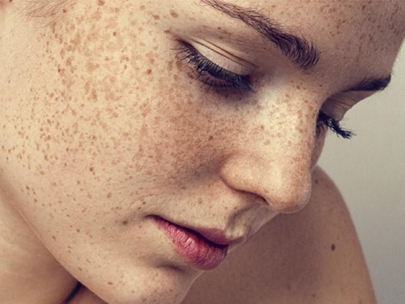 Tratamento de manchas na pele: por onde eu comecei?