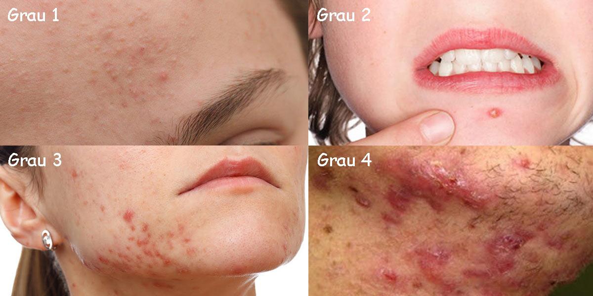 Graus da acne: conheça a causa e os tratamentos- Dicas da Jaque