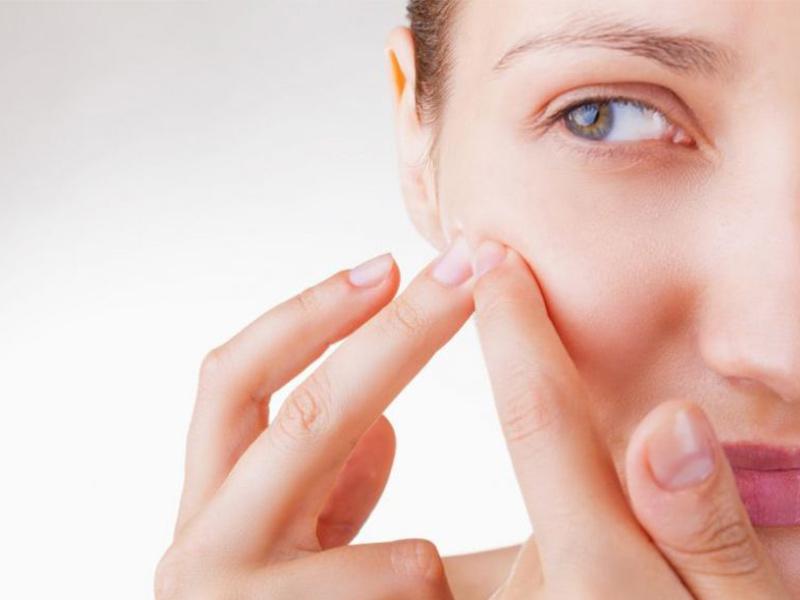 Graus da acne: conheça a causa e os tratamentos