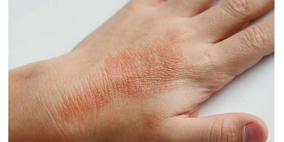 Como identificar doenças graves na pele- Eczema- Dicas da Jaque