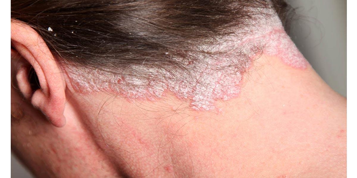 Como identificar doenças graves na pele- Psoríase- Dicas da Jaque