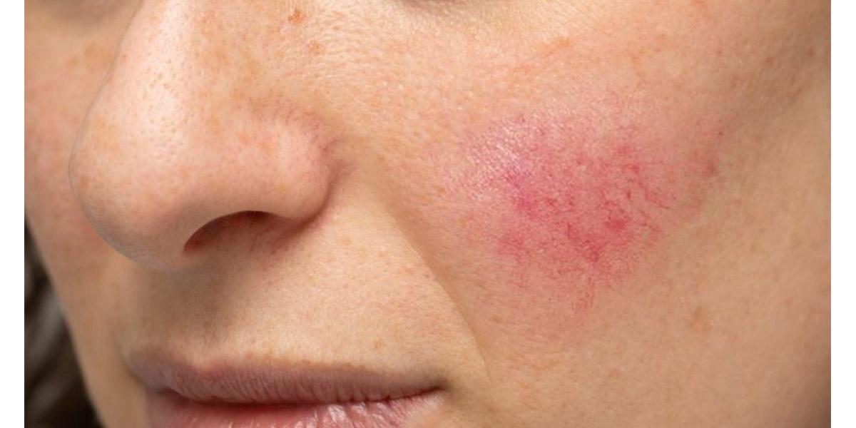 Doenças na pele- Rosácea- Dicas da Jaque