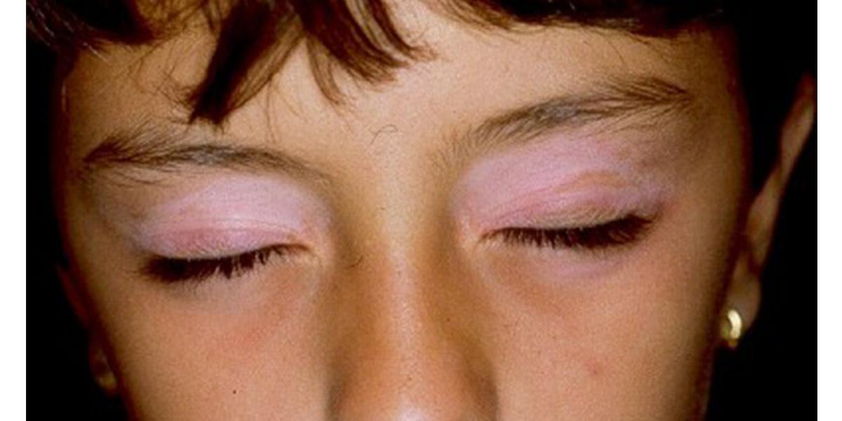 Doenças graves na pele- Vitiligo- Dicas da Jaque